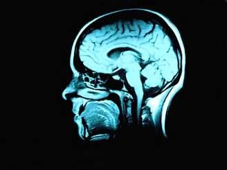 Mozek umí napravit škody, které mu způsobil alkohol