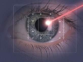 Oko, laser - (c) profimedia.cz