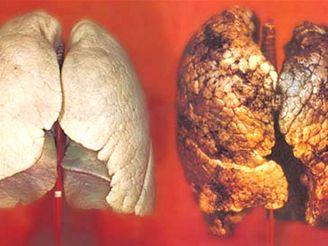 Plíce zdravého člověka a kuřáka. Jeden ze 36 motivů, které by se mohly objevit na českých krabičkách cigaret.