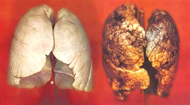 Zdravé plíce a plíce kuřáka.