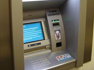 Tlačítka bankomatu jsou ideálním místem pro mikroby. Příliš často se totiž nemyjí.
