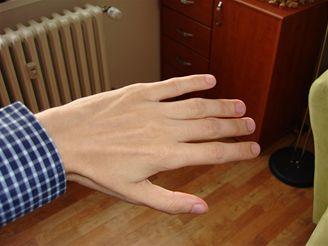 ruka blesk