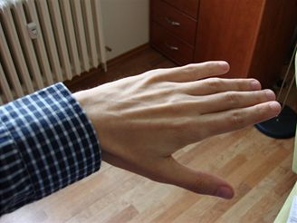 ruka bez blesku