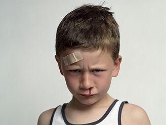 Zrádný je úder do hlavy, protože krvácení do mozku se může projevit až po několika hodinách.