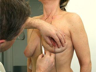 Estetická medicína - mammaplastik