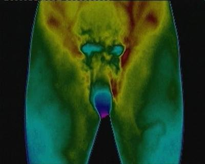 Penis vyfocený fotoaparátem citlivým na teplotu