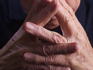 Vaše kůže se postupem času vysuší, ochabne a ztratí se část svalů.