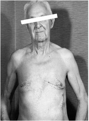 Patient with Greatbatch's pacemaker