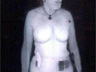 Rentgenový snímek ženy