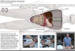virtuální pitva na HBO: Virtual Autopsy