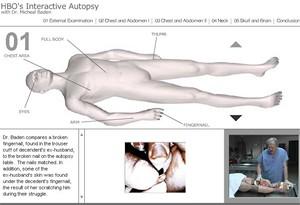 Fotografie z průběhu pitvy 1 - HBO: Virtual Autopsy