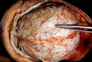 Detail otevřené lebky - mozek
