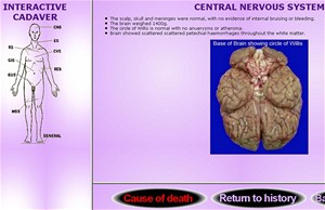 Screenshot programu Virtual Autopsy - University of Lecester