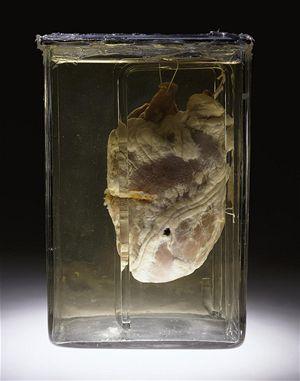 Prostřelené srdce