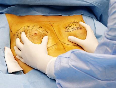 Operace prsou metodou Macrolane - kontrola symetrie
