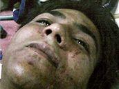 Azám Amír Kasáb krátce po zatčení v bombajské nemocnici.