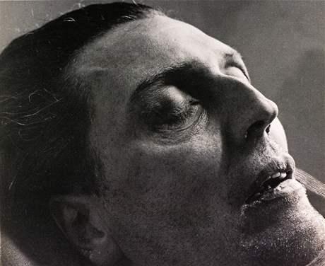 Trude Fleischmann: Rakouský hudební skladatel Alban Berg na smrtelné posteli, 24. prosince 1935