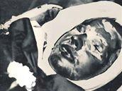 Fotografie zesnulého Jana Palacha v Ústavu soudního lékařství byla otištěna v několikerých západních novinách a časopisech. StB bez úspěchu pátrala po jejím autorovi.