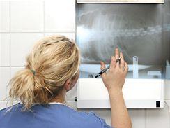 Nádor je většinou objeven na rentgenogramu.