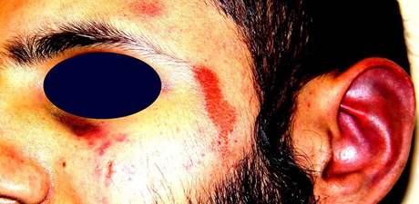 Zranění, která způsobili Babaru Ahmadovi policisté