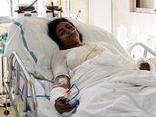Anna Siváková, hospitalizovaná na JIP popáleninového centra ve Fakultní nemocnici v Ostravě - Porubě