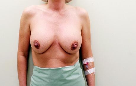 Čtenářka Jana se rozhodla pro výměnu implantátů a modelaci prsou