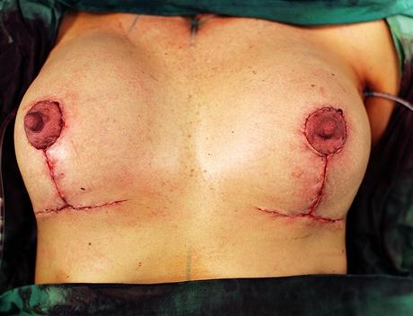 Těsně po zákroku - výměna implantátů a modelace prsou