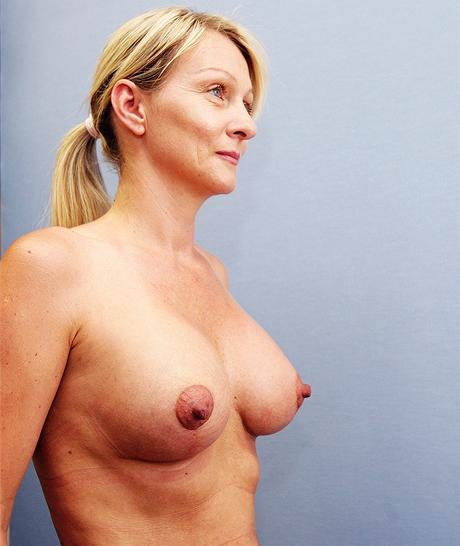 Čtenářka Jana na kontrole měsíc po výměně implantátů a modelaci prsou