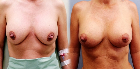 Jana před (vlevo) a po výměně implantátů a modelaci prsou