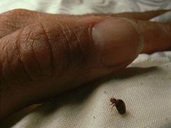 Štěnice vylézají z matrací a pelestí postele v noci, když spíte. Pak se nerušeně napijí vaší krve a zase mají na nějakou dobu vystaráno. Další štípance najdete třeba až za týden či deset dní.