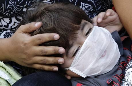 Malý Brazilec čeká na vyšetření před nemocnicí v Rio de Janeiru