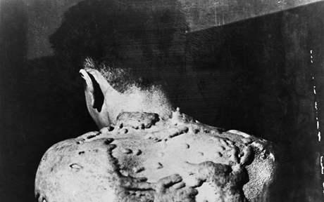 Muž, který přežil svržení atomové bomby na Nagasaki v srpnu 1945.