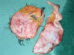 Skalpovaná část hlavy Romany Kučerové, kterou v únoru skalpoval stroj v drůbežárně.