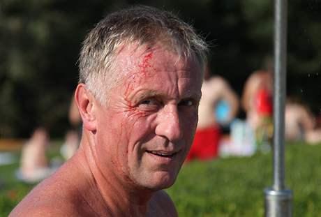 Mirka Topolánka napadli na koupališti v Hustopečích čtyři muži. Kamenem ho zranili na hlavě (21. srpna 2009)