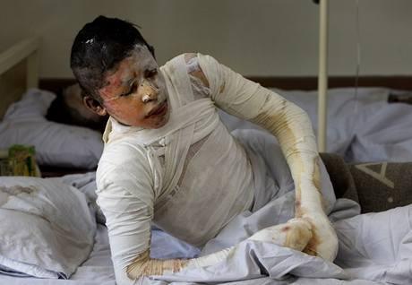 Devatenáctiletý Rahmatullah utrpěl zranění při pátečním náletu NATO na konvoj cisteren.