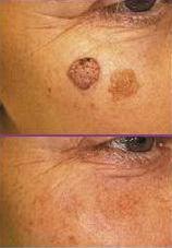 Dermatoskop - útvary v obličeji
