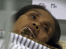 Zraněná žena po zemětřesení, které otřáslo na konci září Sumatrou (9. října 2009)
