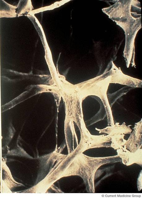 Osteoporotická kos