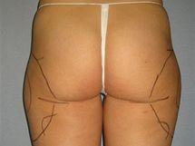 Boky před liposukcí