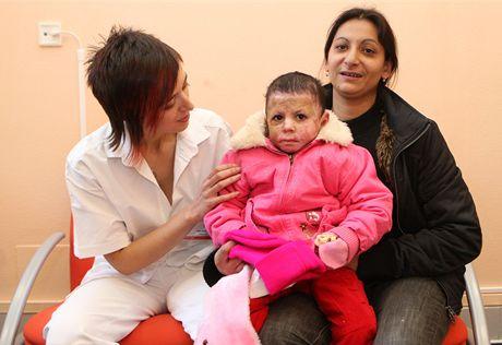 Primářka Zdena Crkvenjaš s popálenou Natálkou a její maminkou.