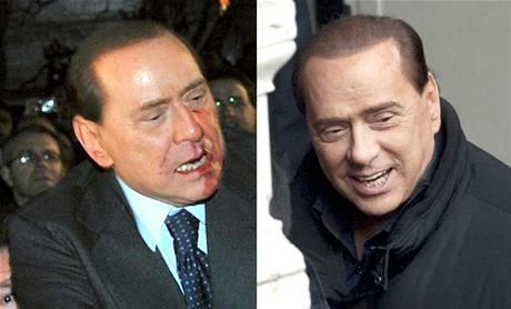 Berlusconi v Miláně 13.12.2009 (vlevo) a v Římě 11.1.2010