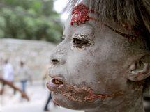Zranění lidé se shromažďují před budovou organizace Lékaři bez hranic v hlavním městě Port-au-Prince. (13. ledna 2010)