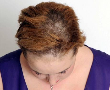 Sophie Peppercorn po použití šamponu Pantene