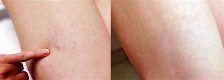 Před (vlevo) a po laserovém odstranění rozšířených žilek (venektázie)