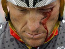 Lance Armstrong s tržnou ranou pod okem po pádu při závodu Kolem Kalifornie.