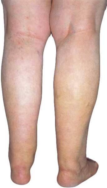 Těžké a oteklé nohy
