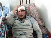 Zraněný etničtí Uzbek v nemocnici u města Oš na jihu Kyrgyzstánu (12. června 2010)