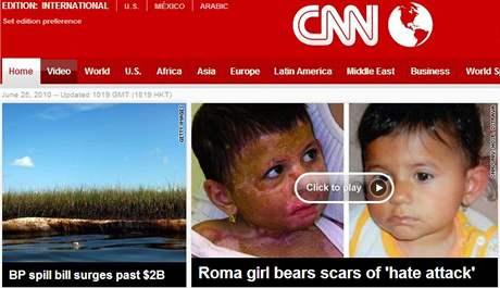 Natálka Kudriková na stránkách CNN