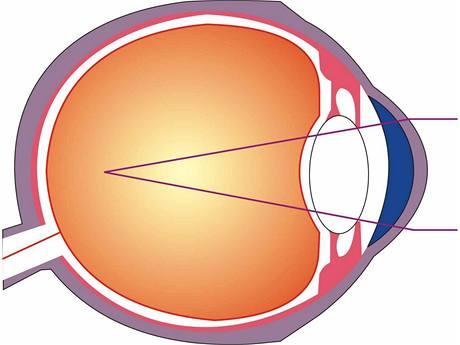 kratkozrake-oko