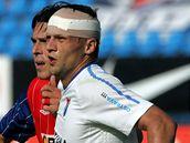 ZRAN�N�. Fotbalista Ban�ku Ostrava Adam Varadi se v utk�n� proti Brnu zranil a hr�l s obv�zanou hlavou.